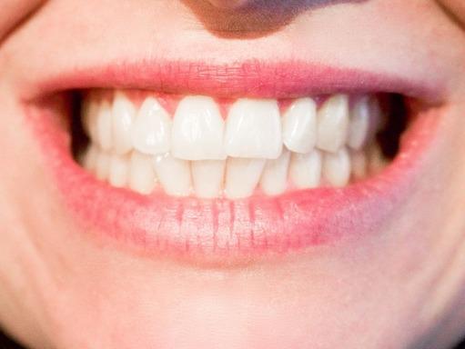 teeth-whitening-houston.jpg